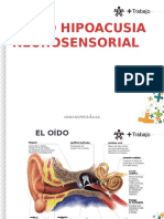 Gatiso hipoacusia neurosensorial