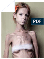 anorexiiia