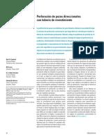 SLB - Perrofacion Direccional con CasingDrilling.pdf
