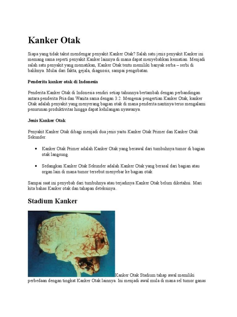 Gejala Kanker Otak Stadium 1 - Info Kesehatan