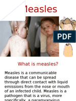 measlespresentation