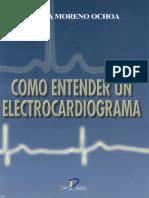 Como entender un electrocardiograma