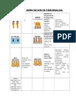 Puntos De Impactación En Fibromialgia.docx