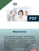 Neumonia.2015