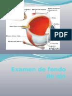 Examen de Fondo de Ojo (1)