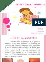 Mastistis y Galactoforitis (1)