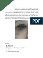 Patomekanisme Memar