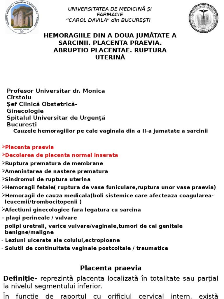 varicoză placentă în timpul sarcinii