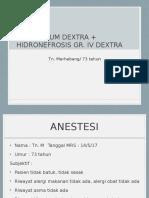 Hidronefrosis Dextra