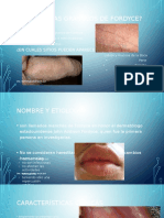 Granulos defordyce
