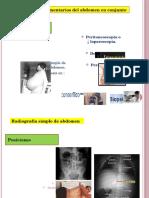 Examenes Complementarios Del Abdomen-semiologia Capitulo 70