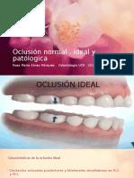 Oclusión Normal , Ideal y Patólogica