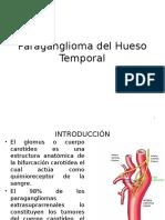Paraganglioma Del Hueso Temporal o Glomus Yugular
