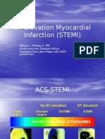 ST Elevation Myocardial Infarction (STEMI) Talk