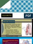 pleuritis.pptx
