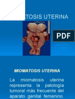 MIOMATOSIS_UTERINA_UPAO