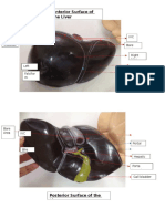 Models on Liver and Some GI