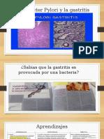 La Gastritis y Su Bacteria