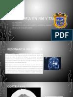 Anatomía en RM y TAC