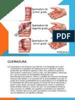 QUEMADURA (1)