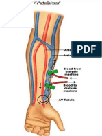 Značaj Duplex Scan Ultrazvuka Arteriovenske Fistule