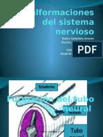 Malformaciones Del Sistema Nervioso