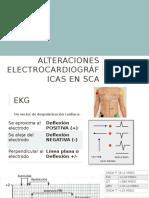 Alteraciones Electrocardiográficas en SCA