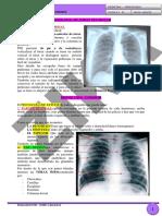 10.Radiologia de Torax Pulmonar I-dr Pozzo. (Presencial).06!06!16