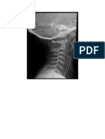 Spine Plain Radiograph