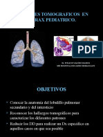 Tc Torax Pediatria