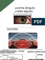 Glaucoma ángulo cerrado-agudo.pptx