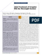 Topography Guided Treatments With Wavelight Allegretto Wave for the Irregular Astigmatism