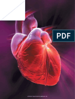 ATHEROSCLEROSIS in an artery feeding the heart.pdf