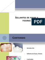 93541369 Sellantes de Fosas y Fisuras