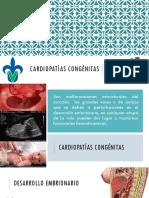 Cardiopatías_congénitas