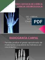 ANALISIS CARPAL COMPLETO pdf.pdf