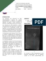 Aislamiento de DNA Plásmidico