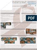 BRAQUITERAPIA INTERSTICIAL NO TRATAMENTO DO CARCINOMA DA MAMA - MÉTODOS E CRITÉRIOS