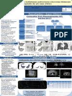 SBRT simultânea sobre metástases pulmonares síncronas bilaterais