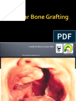 Alveolar Bone Grafting.
