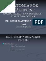 Anatomía Por Imagenes - Macizo Facial