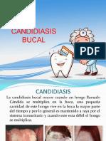 CANDIDIASIS BUCAL