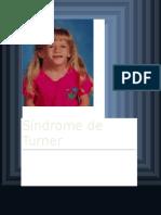 Síndrome de Turner COMPLETO