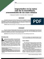 Caso Clinico Cirugia