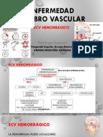 Enfermedad Cerebro Vascular.hemorragicaARROYO