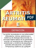 Tratamiento de artritis reumatoide