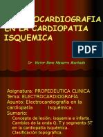 Clase 9 EKG electrocardiograma