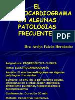 Clase 10 EKG electrocardiograma