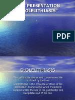 Cholelithiasis_CS