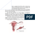 Ectopic Pregnancy_CS